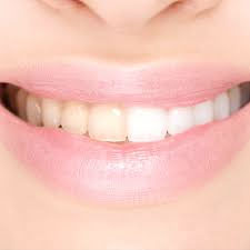 Vita tänder med tandblekning